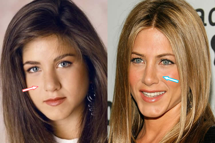 Jennifer Aniston Dermolife